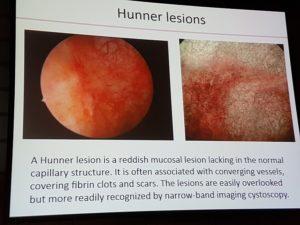 hunner-lesion